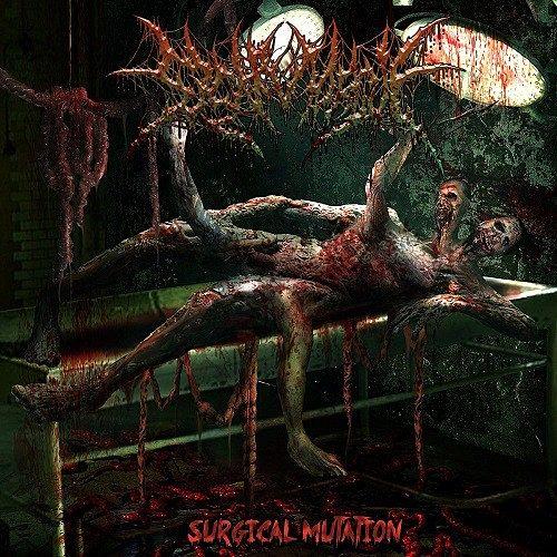SickMorgue - Surgical Mutation (2016) 320 kbps